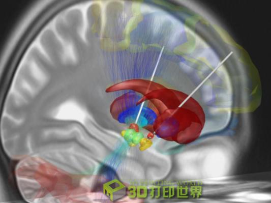 完美复制大脑 加拿大医生如何艺术地运用3D打印