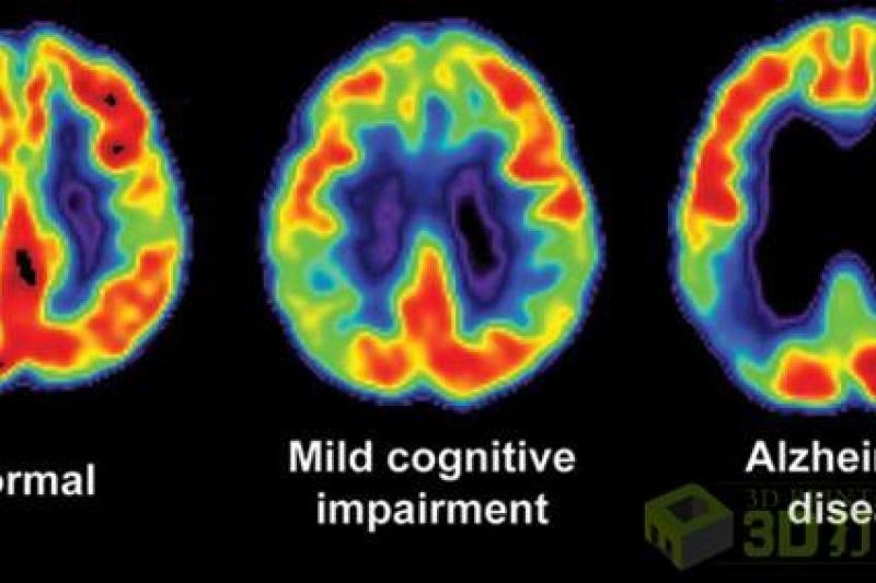 3D打印如何有效帮助阿尔茨海默氏症的前期研究?