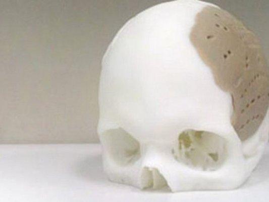OPM公司与耶鲁大学合作开发3D生物打印技术