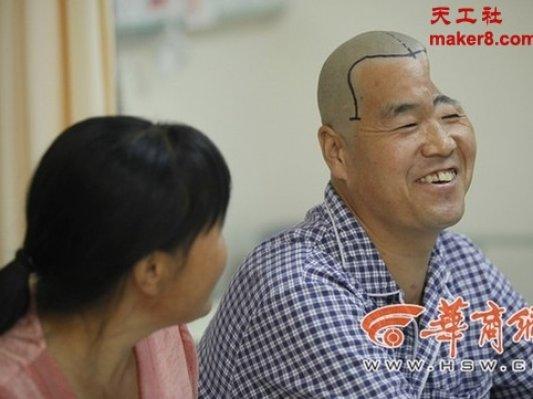陕西男子半头缺失3D打印钛网修复脑盖