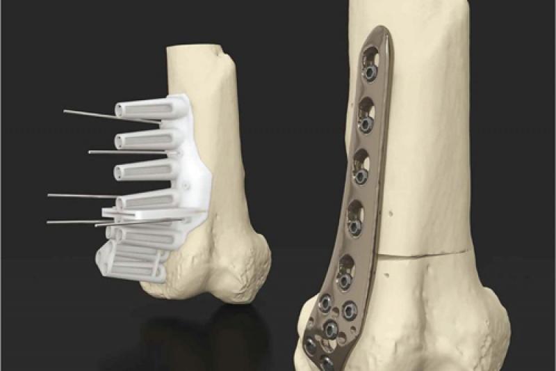 3D打印等7类医疗器械将获国家重点扶持