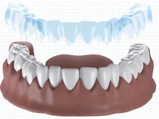 【案例】3D打印定制隐形牙箍,法国Dentosmile怎么做?