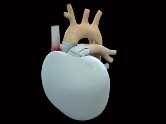 法国Carmat推出3D打印心脏 有望获欧洲市场许可