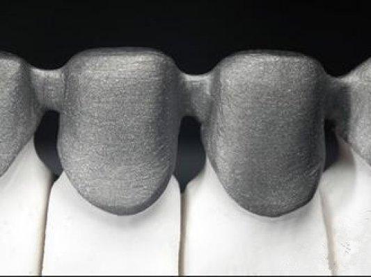 3D打印:口腔数字化变革的必然选择