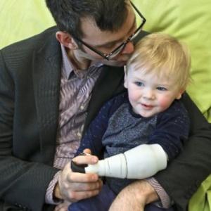 开始虐心结局感人!父亲为出生就被截肢的两岁幼儿3D打印假肢