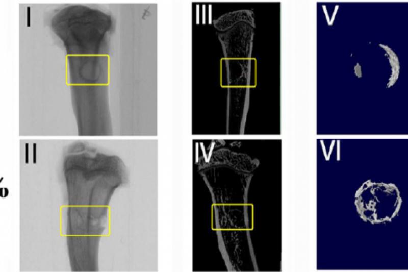 """不明觉厉!中国研究人员研发3D打印""""粘土水凝胶""""再生骨骼"""