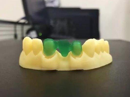 WELLS 3D 新一代数字化齿科打印专家