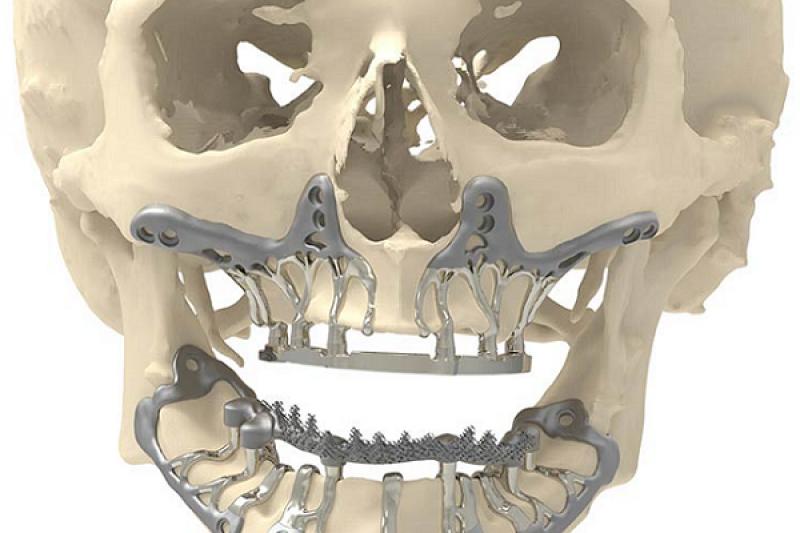 案例分析:针对骨萎缩的3D打印颌骨钛植入物,手术只需1小时
