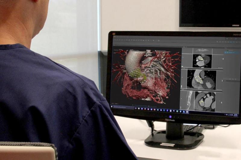 3D Systems推出D2P虚拟现实技术,助力精准医疗