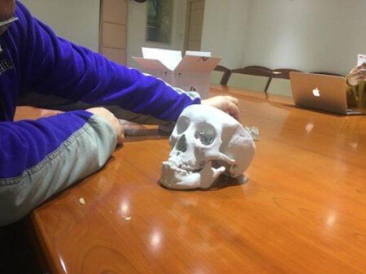 """8岁小孩摔一跤颅底穿洞,广州医生用3D打印 PEEK""""小塞""""修补"""