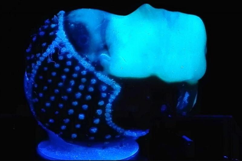 科研新突破:3D打印制造细菌墨水治疗皮肤烧伤