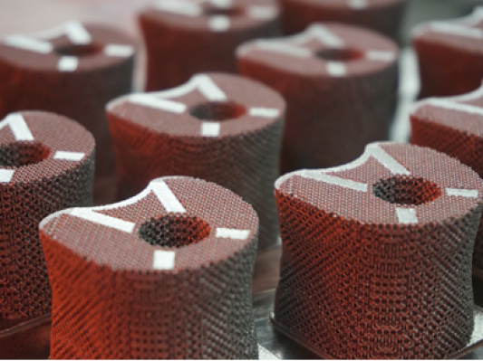 """世界首例3D打印个性化""""人工椎体/腰间盘一体化""""植入手术在广州成功进行"""