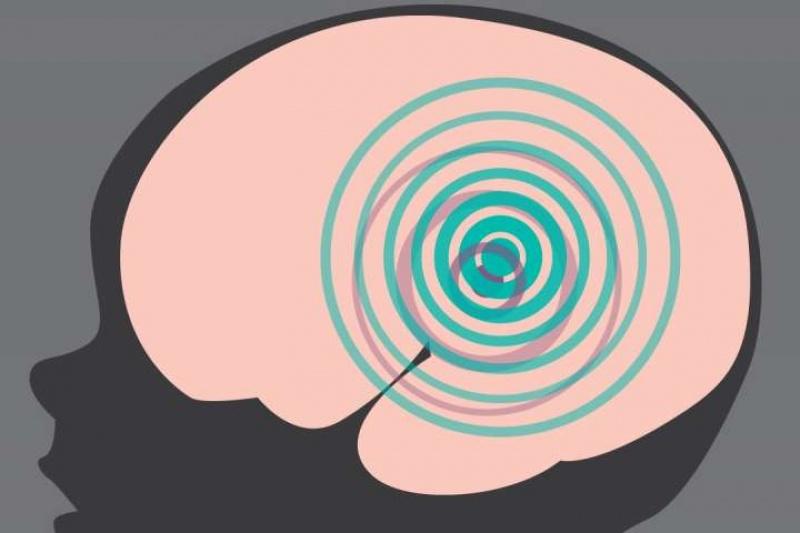 科学家用3D打印测量未出生婴儿大脑褶皱发育形态