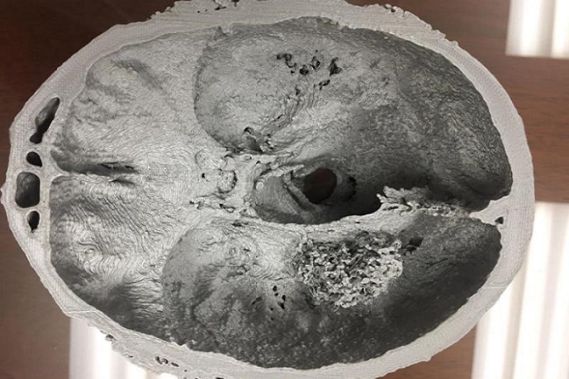Nova Scotia 外科首例!使用3D打印脑部模型辅助切除肿瘤