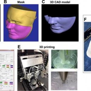 3D生物打印面罩可快速治疗面部创伤