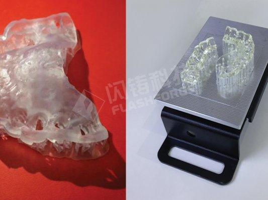浅谈3D打印在口腔领域的应用