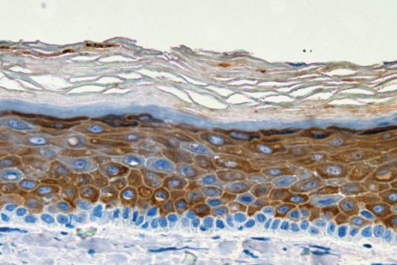 再造3D生物打印人体皮肤模型,这意味着什么?
