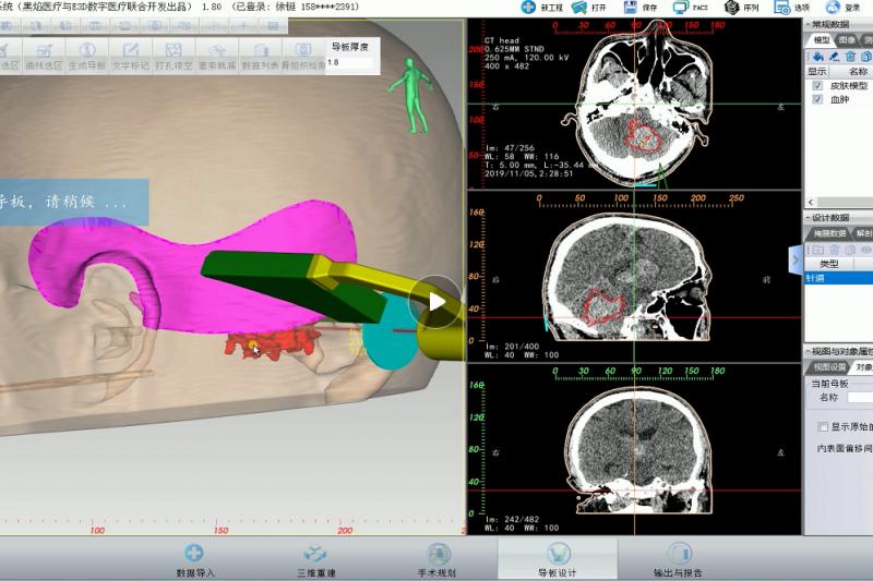 即时3D打印导板辅助脑出血微创手术 黑焰医疗与徐永革团队助力基层医院 --精致的脑出血微创手术 基层医院也能做到