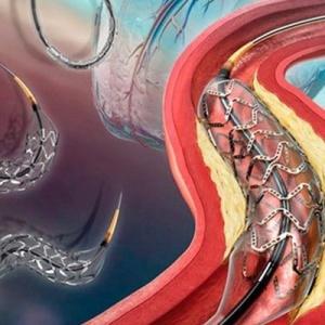 澳科研机构研发出一种3D打印血管支架