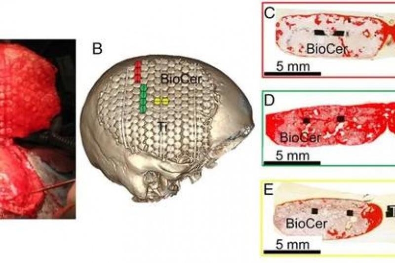 瑞典科学家研发3D打印生物陶瓷植入物可诱导颅骨再生