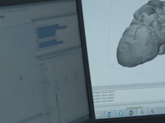 Materialise发布最新3D医疗建模软件